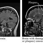 brainms
