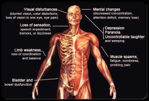 multiple-sclerosis-s11-ms-symptoms1